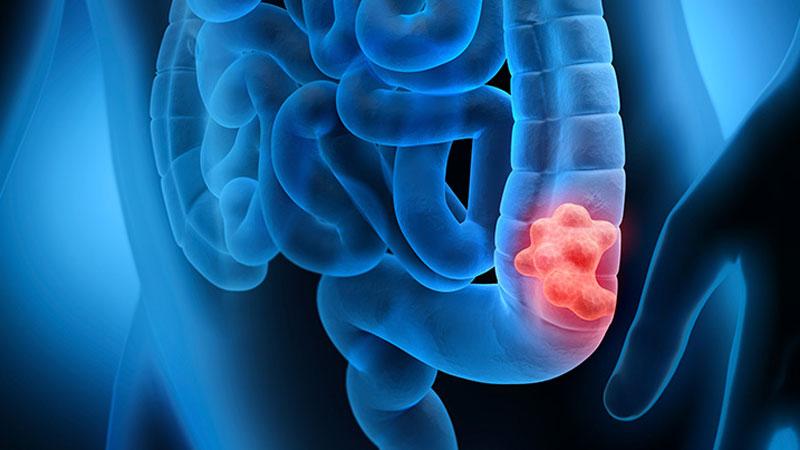 Informasi Tentang Kanker Usus Besar, Gejala, dan Pencegahannya